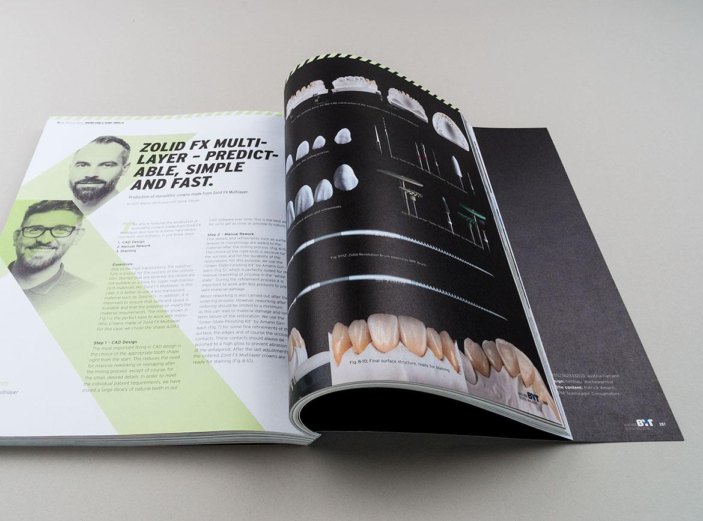 Beitrag zu Zolid FX Multilayer im BYT Magazin